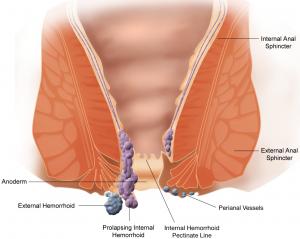 Hemorrhoid relief